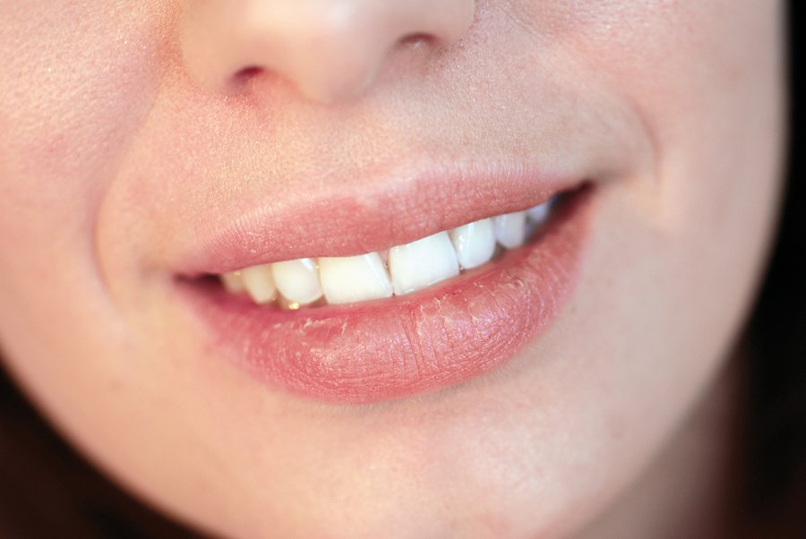 5 Fastest Ways To Prevent And Get Rid Of Cold Sores