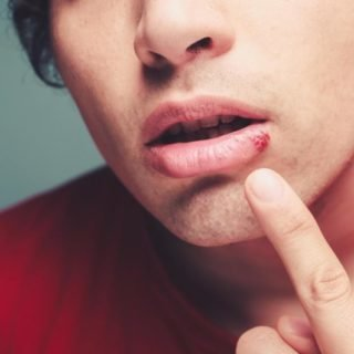 how to get rid of cold sores overnight