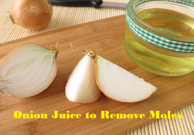 onion juice for mole removal