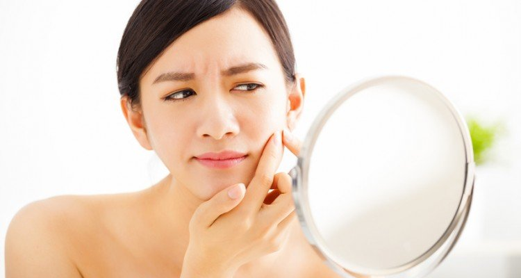 How to get rid of acne blemishes overnight