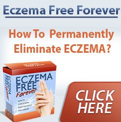 Eczema Free Forever Review – How To Treat Eczema Naturally