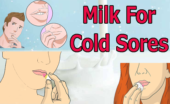 milk for cold sores