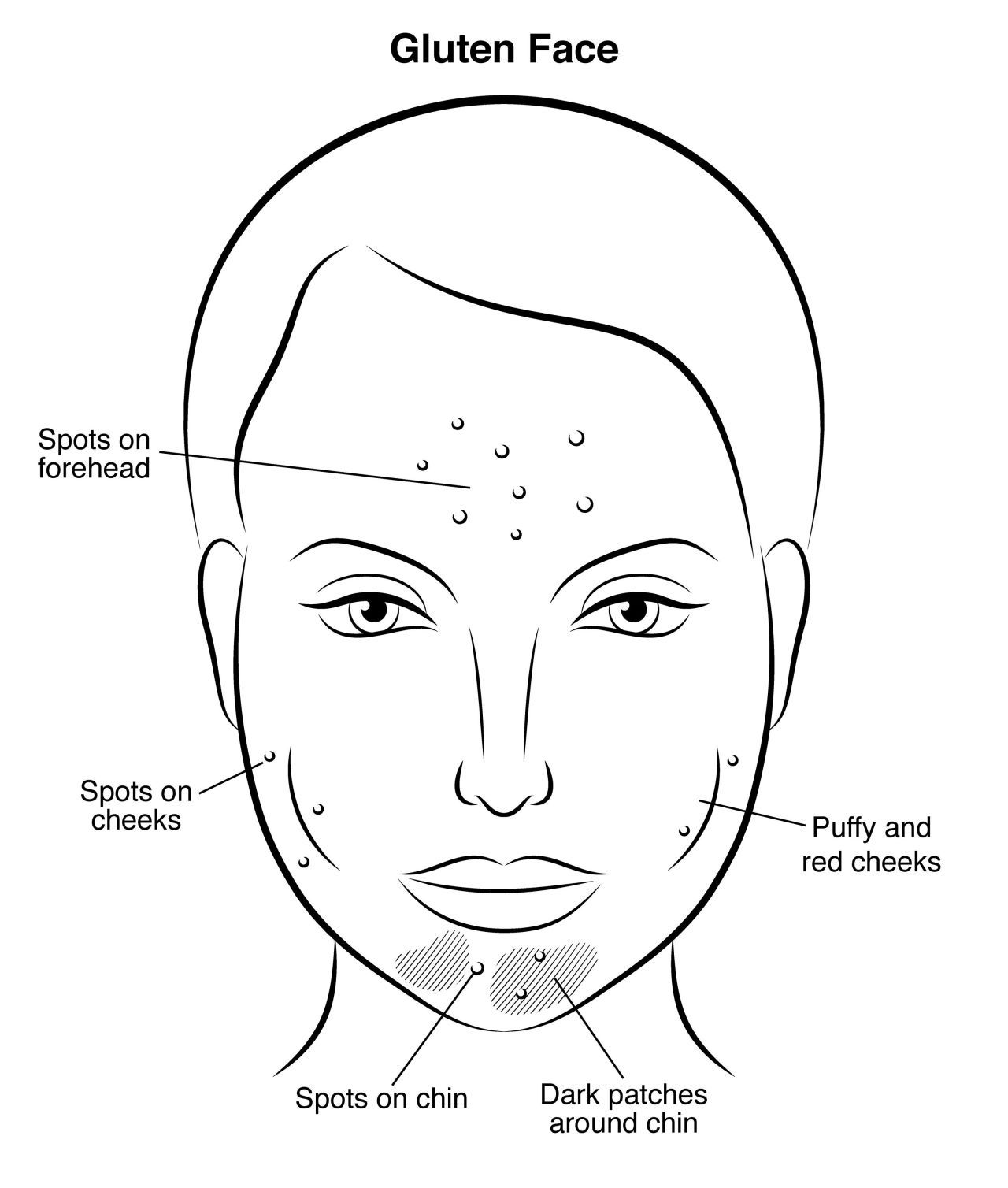 is dairy bad for skin